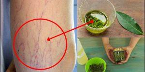 folha de louro para eliminar as varizes e dor nas articulaçoes