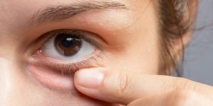 bicarbonato de sodio para eliminar olheiras