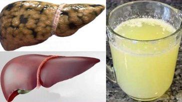 Mistura Caseira de Gengibre Para Curar o Fígado Gordo em 30 Dias