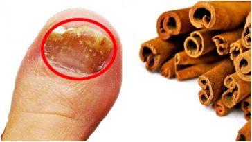 Receita Caseira Para matar fungos nas unhas com a Canela