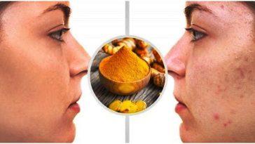 Receita Caseira da Mascara de Açafrão Para Remover Acnes do Rosto
