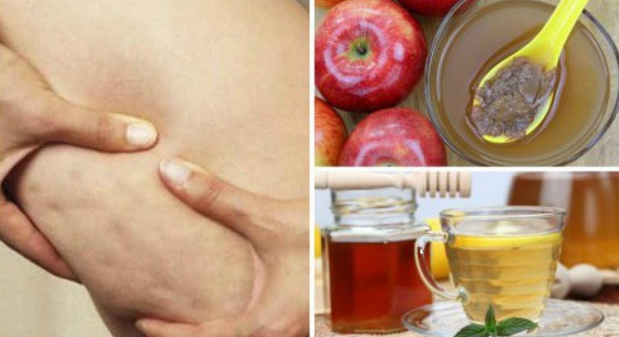 vinagre de maçã e água morna para acabar com as celulites