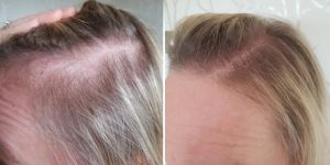 como parar a queda de cabelo