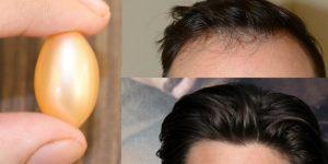 melhores vitaminas para o cabelo crescer (2)